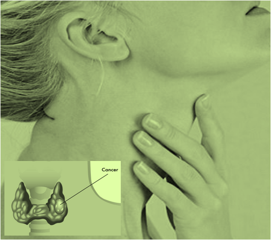 Cancer Present in the Thyroid Glands is called Thyroid Cancer
