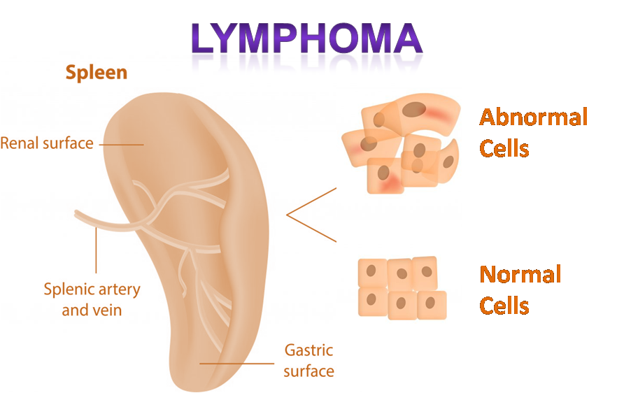 Lymphoma is a Cancer of lymphatic System