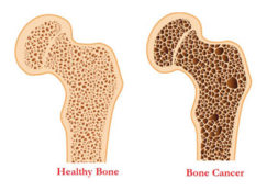 Difference between healthy and cancer-struck bone